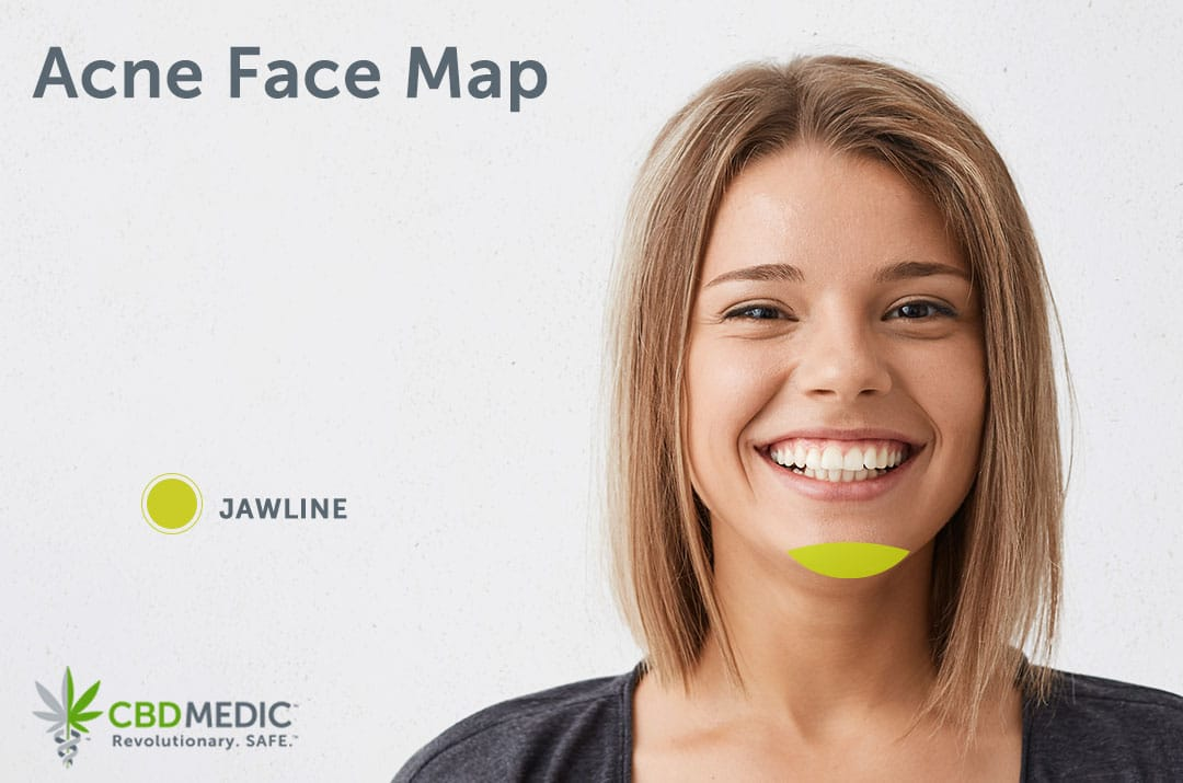 Smiling Woman Using Acne CBD Product
